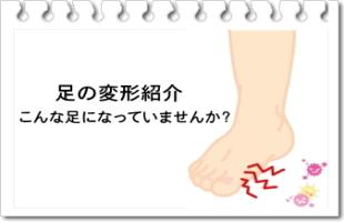足のトラブルのイメージ