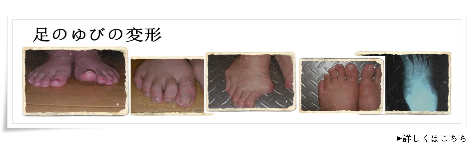 足の変形と障害/さいたま市のインソール